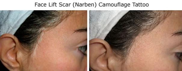 face-life-scar